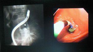 磁石と腸管